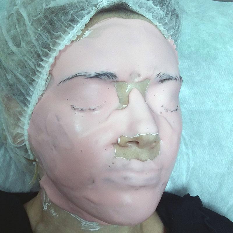 фотоомоложение лица