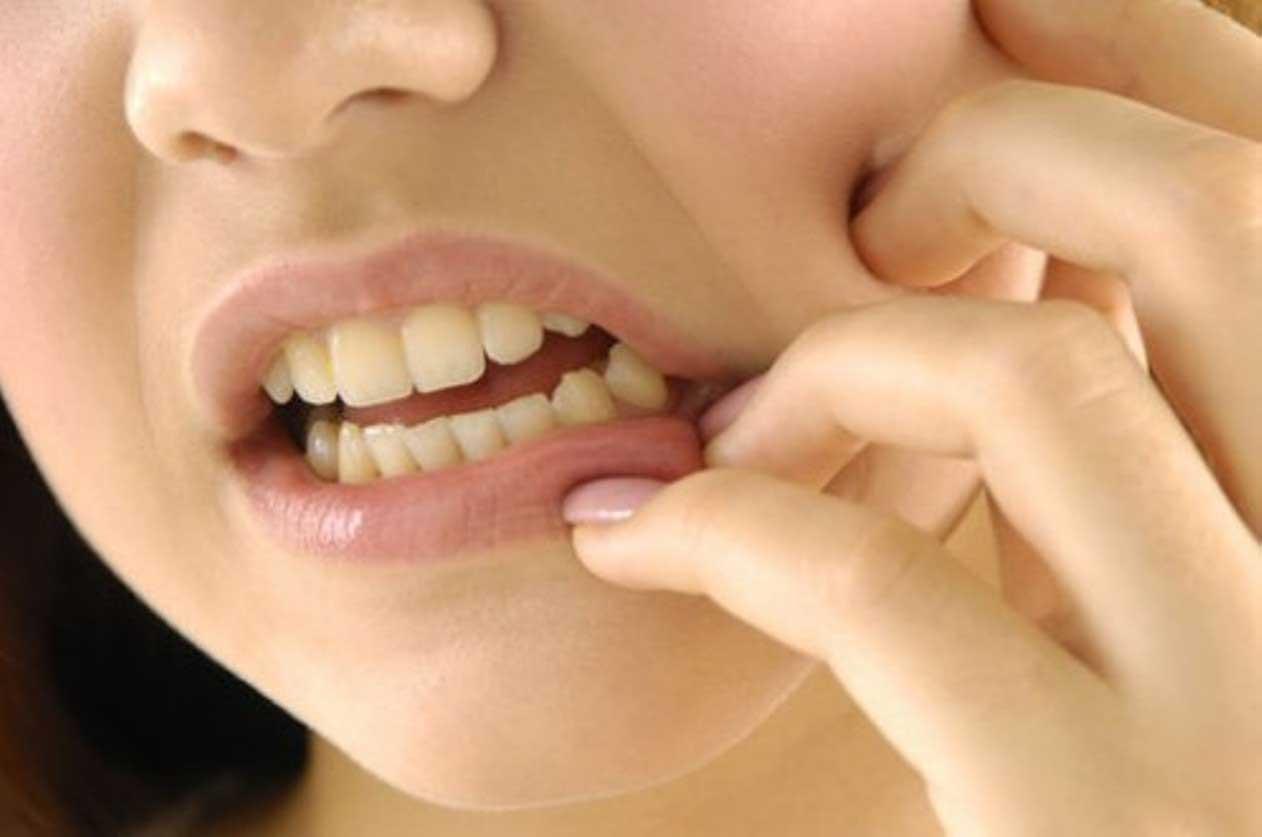 лечение флюса зуба