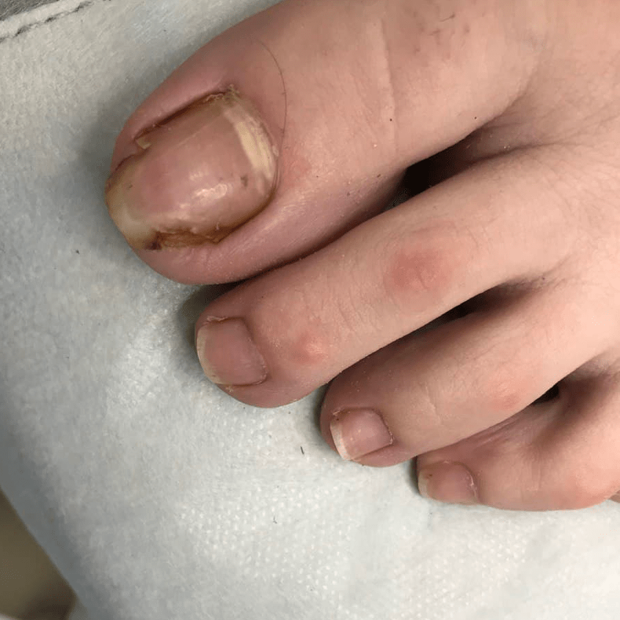 Переношенная длина ногтевой пластины