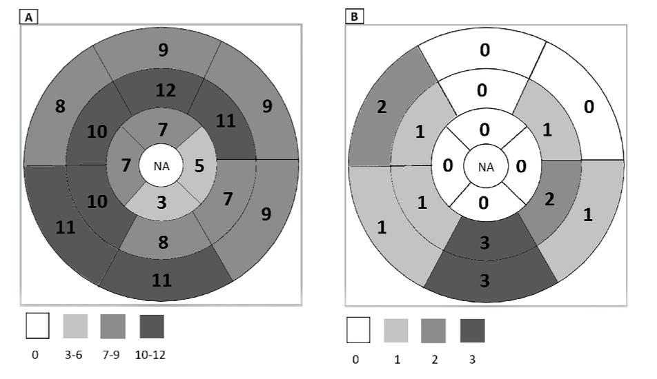 Рисунок. Количество сегментов (16-сегментная модель АНА) с патологическими изменениями – признаками отека миокарда (А) и позднего накопления гадолиния (B) у 15 пациентов с патологическими МРТ-изменениями в миокарде.