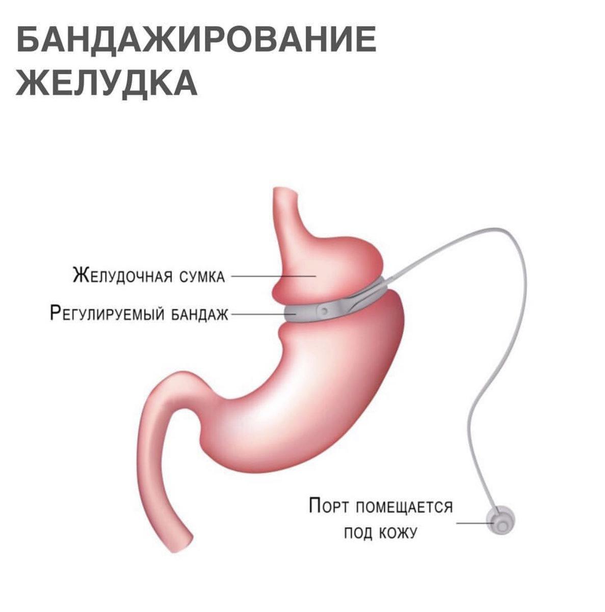 Резекция Желудка Для Похудения Цена Екатеринбург.