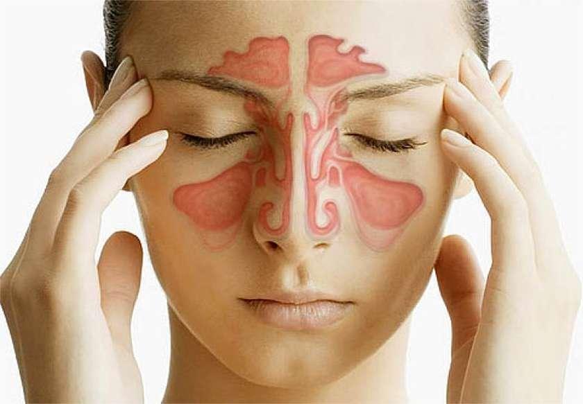 головная боль при рините
