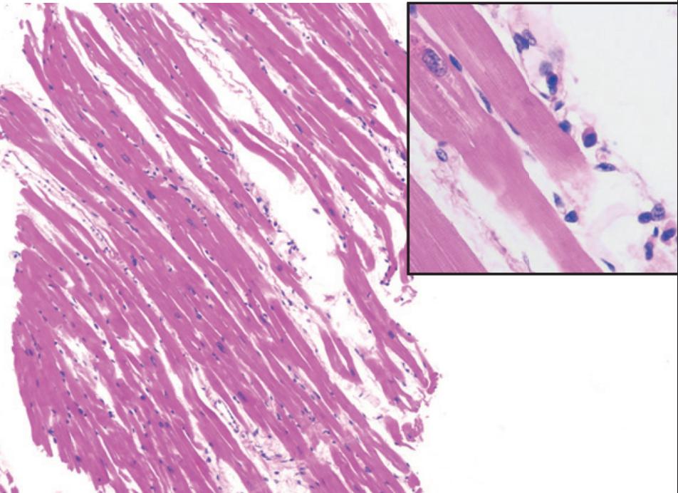 Миокардиальное повреждение встречается у 19,7% госпитализированных пациентов с COVID-19 и ассоциируется с более высоким риском внутрибольничной летальности