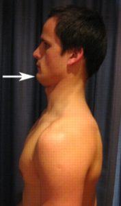 Пример упражнения с подбородком
