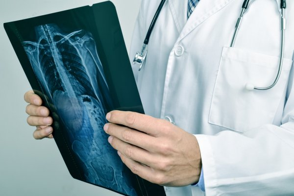 Рентген при гемангиоме позвонка