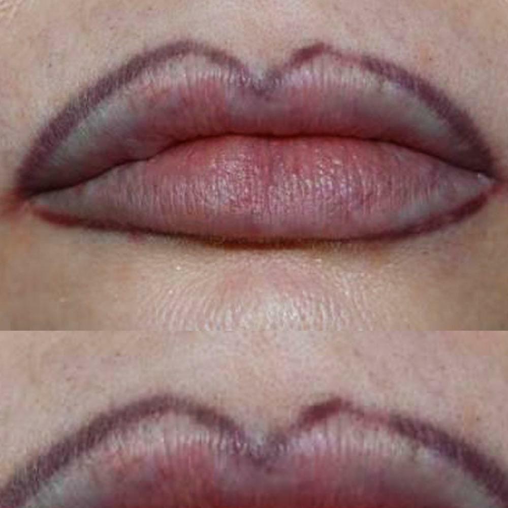 Фото неудачного татуажа губ - Какими бывают последствия татуажа