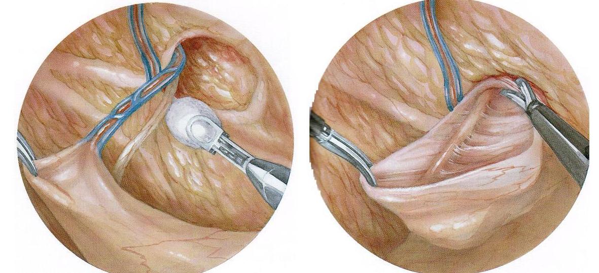 Диета После Герниопластики. Паховая грыжа: что можно кушать после её удаления
