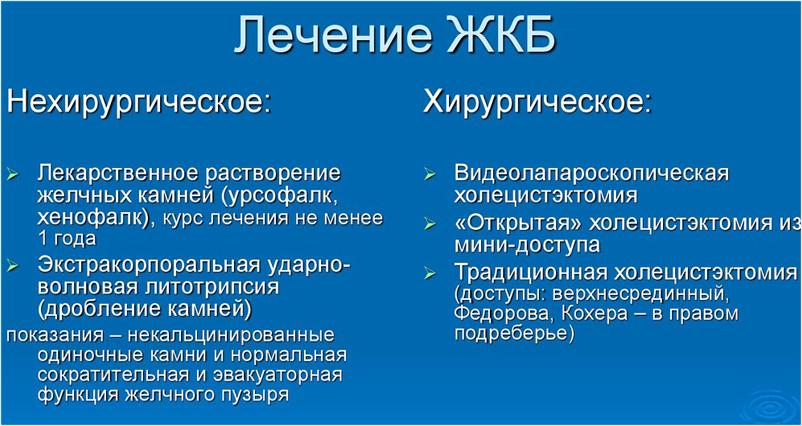 Методы лечения ЖКБ