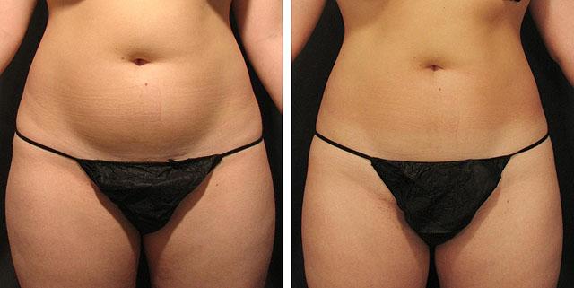 До и после на аппарате прессотерапии_Zemits_Sisley