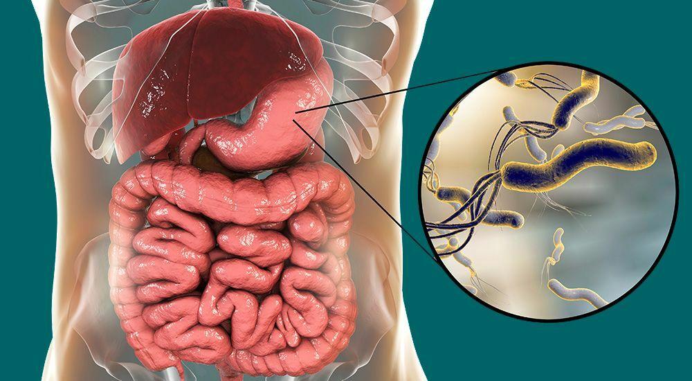Helicobacter pylori — небезпечний мікроорганізм, бактерія