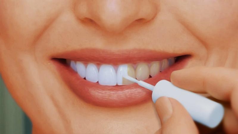 Отбеливание зубов саратов цены