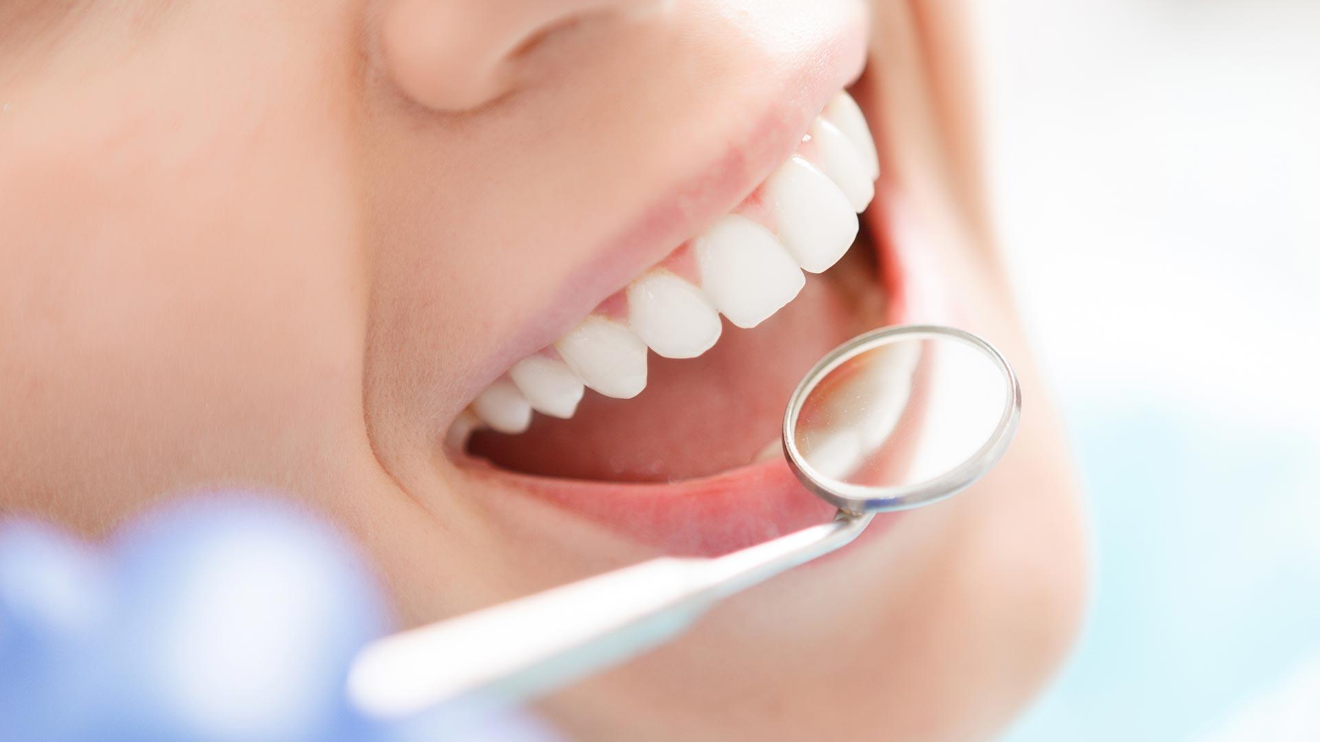 Стоматологические клинья