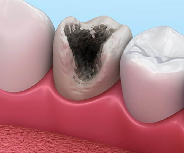 выпадение пломбы из зуба