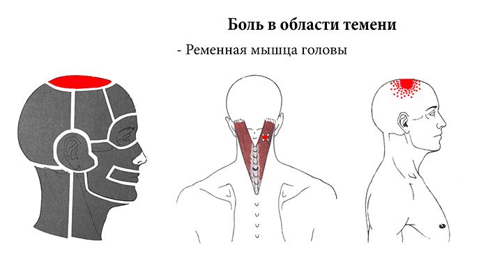 боли в теменной части головы