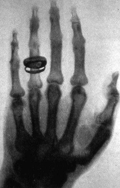 Снимок руки Альберта фонКёлликера, сделанный Рентгеном 23 января 1896года.