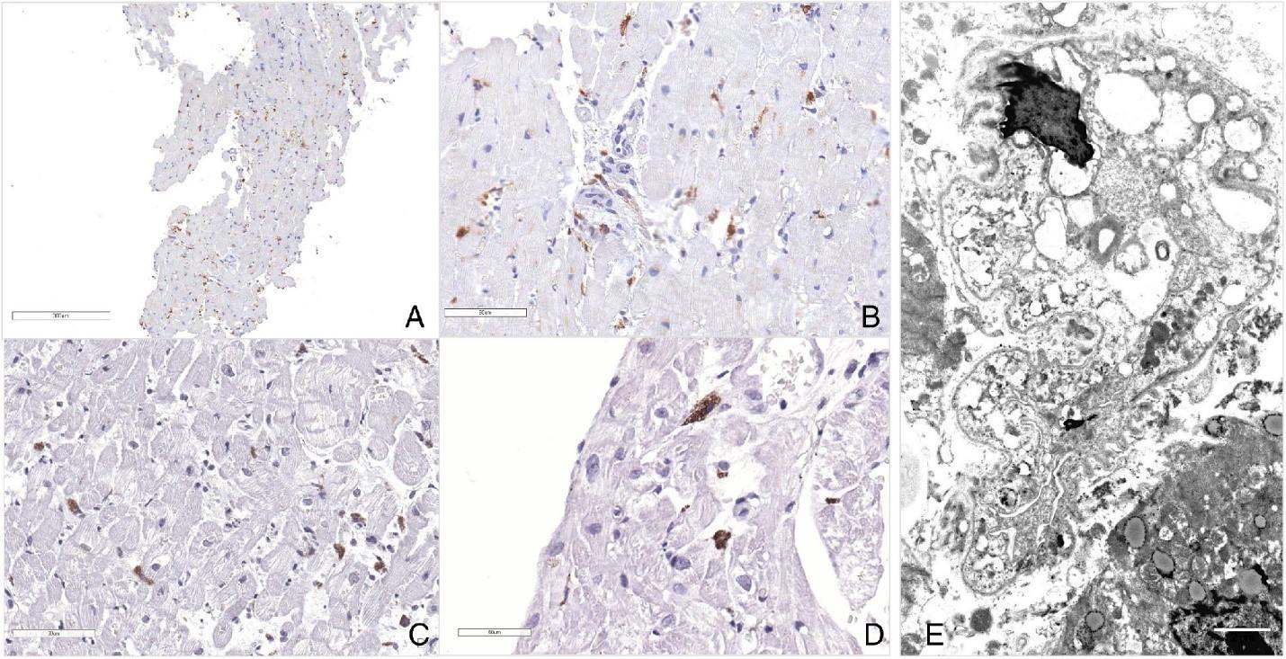 Рисунок 6 [10]. Электронная микроскопия с окрашиванием воспалительного инфильтрата. (А,В) Малое и большое увеличение эндомиокардиальных биоптатов с редкими CD45RO – положительными клетками. (C,D) – увеличенные вакуолизированные макрофаги, окрашенные с помощью анти-CD86 антител. (Е) Ультраструктурная морфология крупного цитопатичного макрофага.