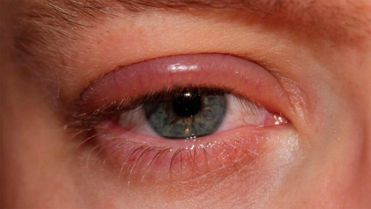 Опухоль глаз, Дмитрий Раевский рак, лечение, онкология, Здравница Дмитрия Раевского, альтернативная медицина