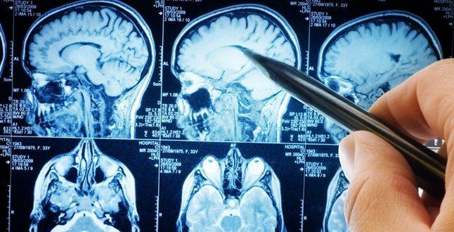 МРТ при головной боли