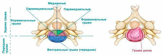 Классификация грыжи