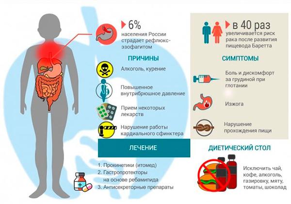 Симптомы и причины рефлюкс эзофагита