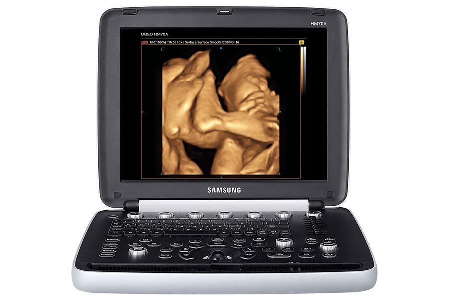 купить УЗИ Samsung HM70