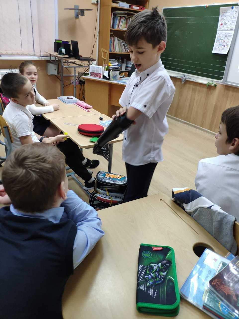 Бионический протез в школе