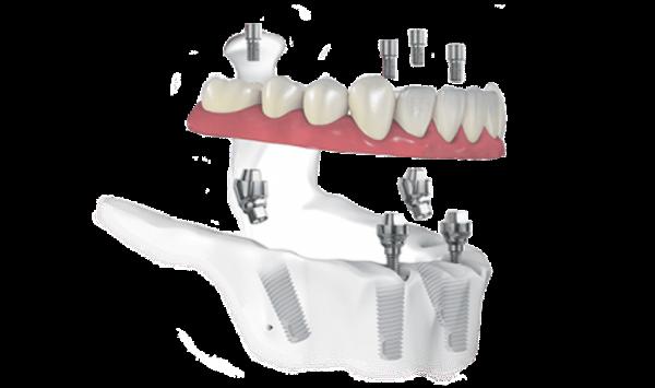Протезирование зубов во Владимире