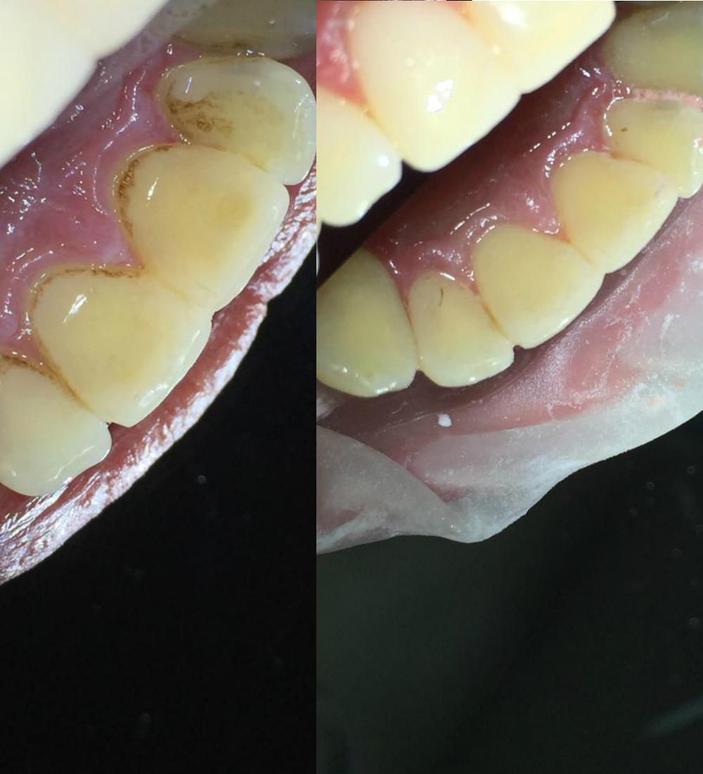 проф гигиена зубов до после