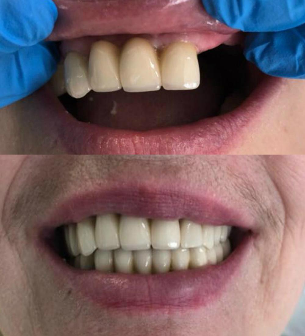 имплантация зубов до после