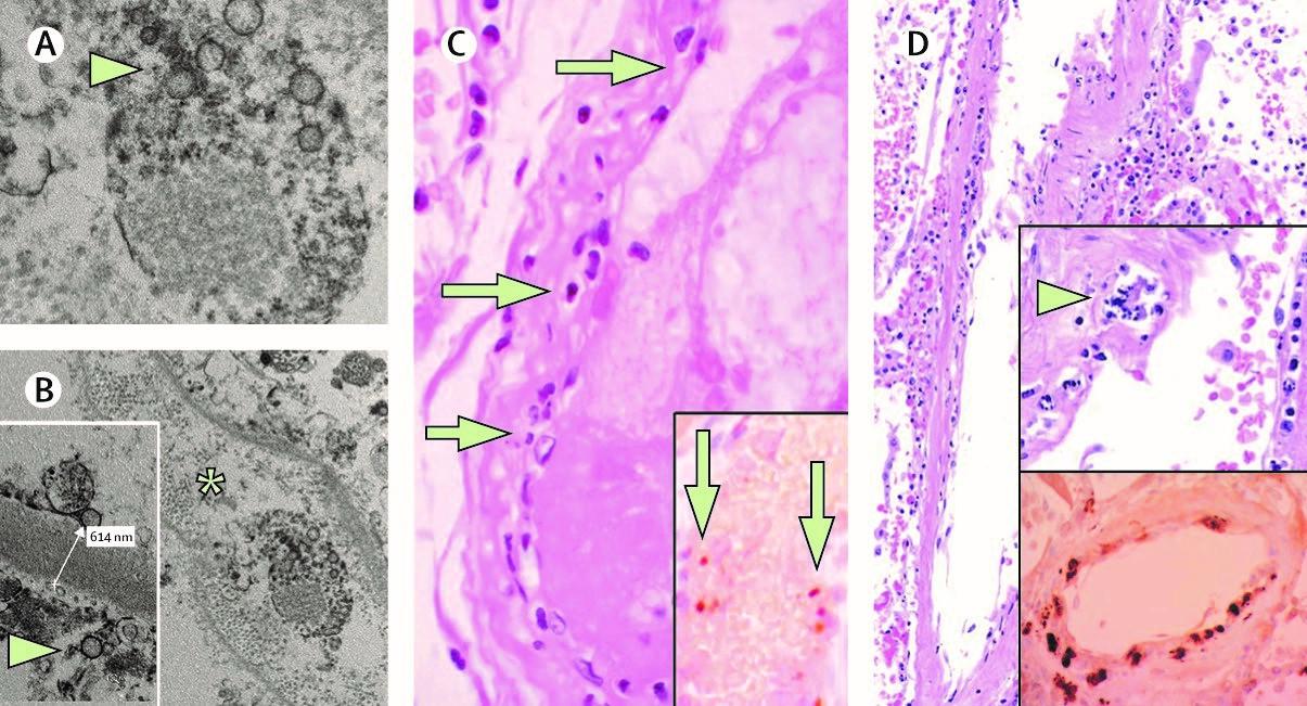Патология эндотелиоцитов при COVID-19