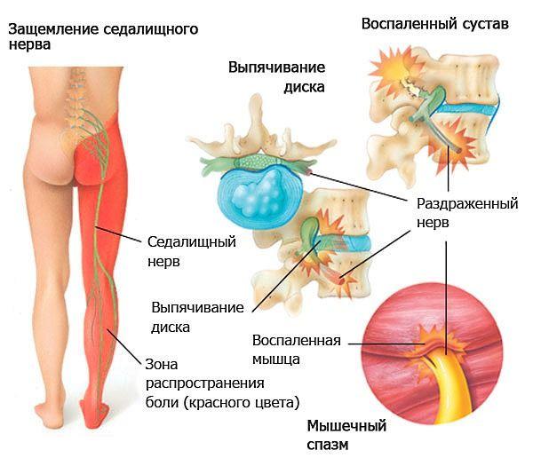 Как выглядит защемление седалищного нерва