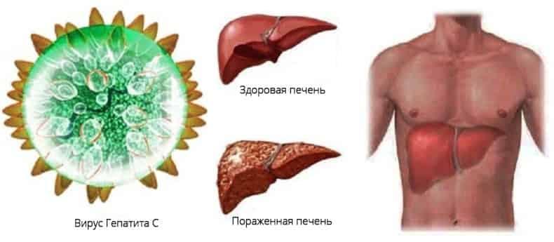 как можно заразиться гепатитом С