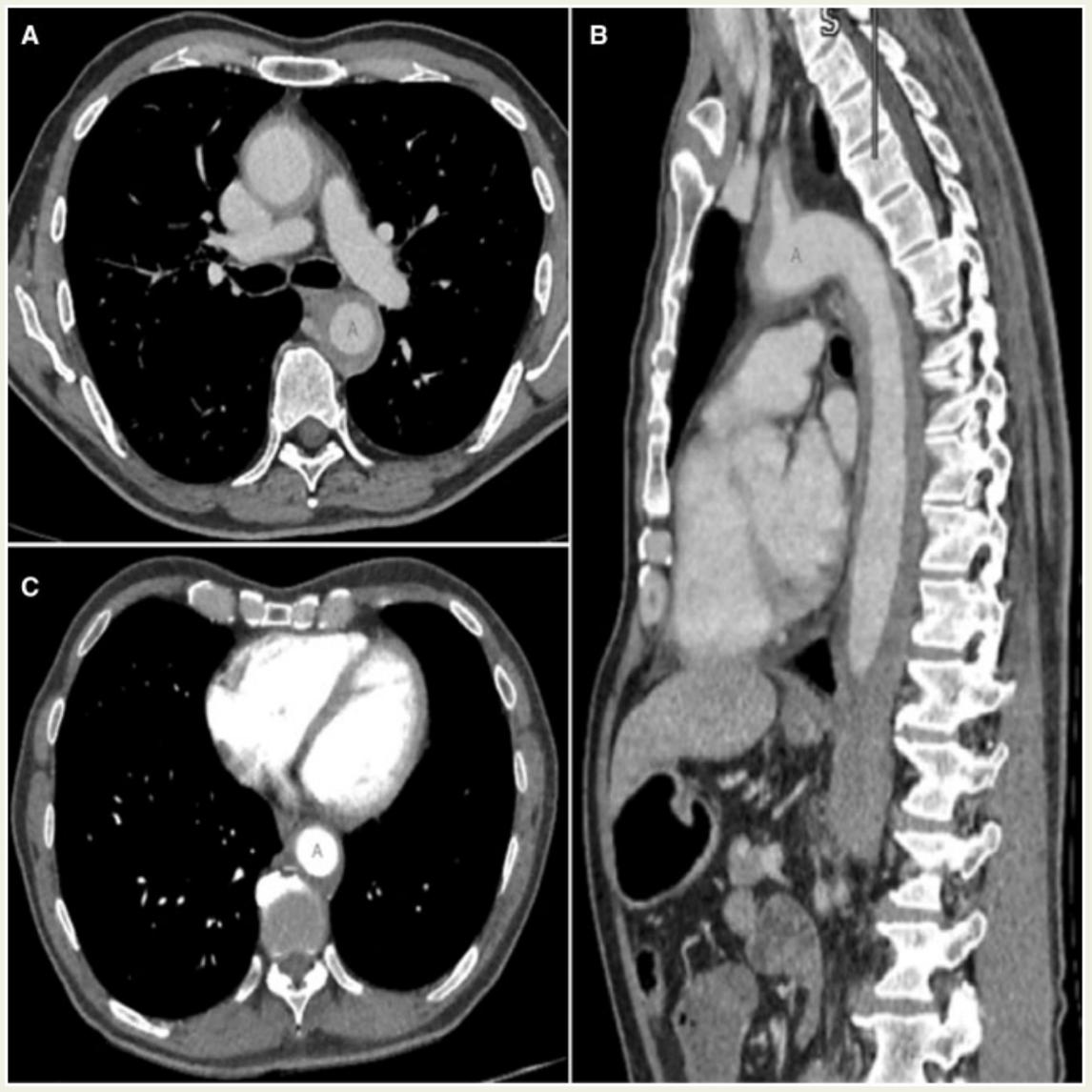 Рисунок. Диффузный воспалительный аортит от подключичных артерий до бифуркации на подвздошные артерии без признаков расслоения или образования псевдоаневризмы (А, В), динамика на фоне терапии преднизолоном (С).