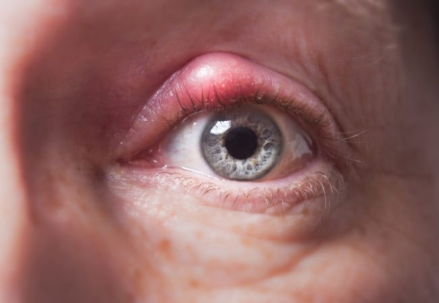 Симптомы ячменя на глазу у взрослого