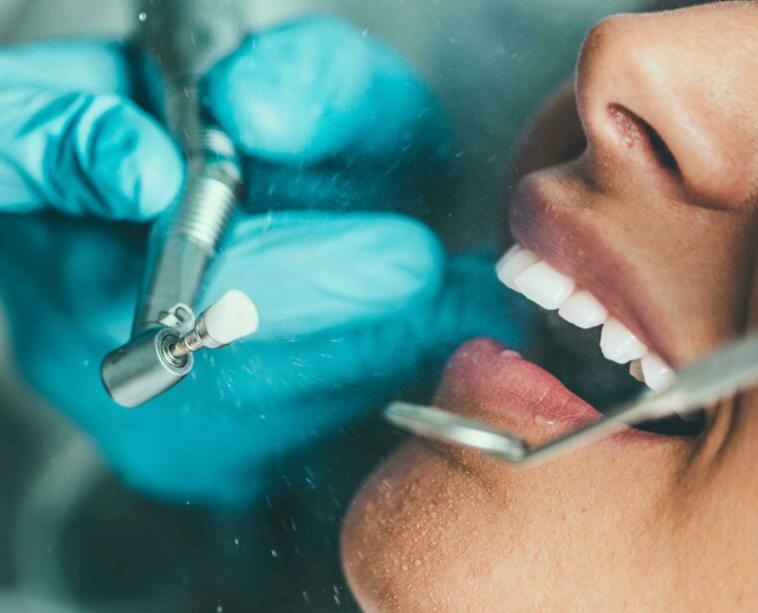 кабинетная чистка зубов