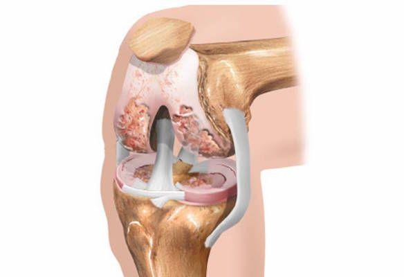 Разрушается коленный сустав что делать без операции почему болит сустав бедра что делать
