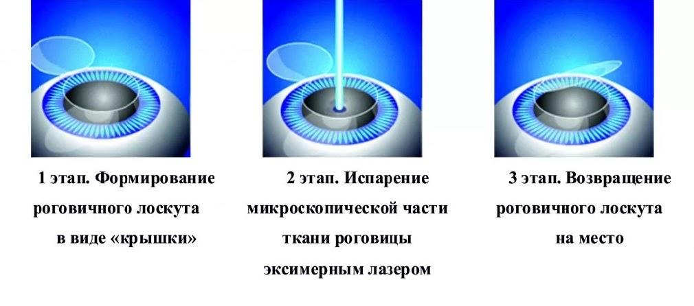 Метод Lasik