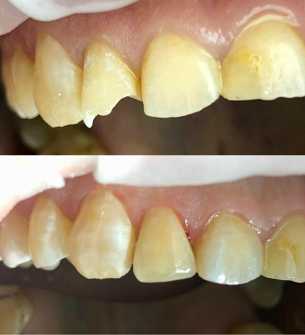 реставрация зубов до после