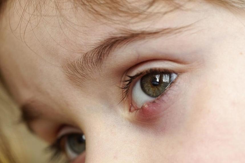Симптомы ячменя на глазу у ребенка