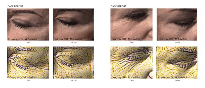 биоревитализация глаза