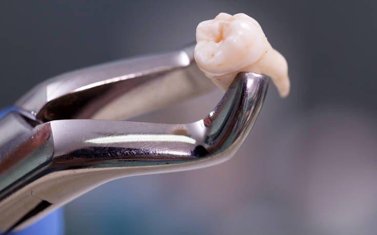 Как удаляют зуб мудрости сверху