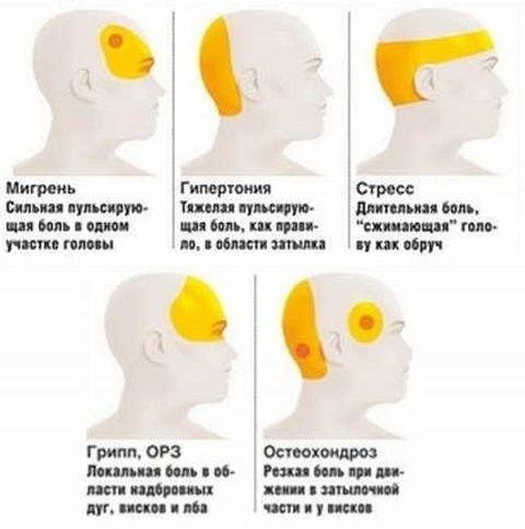 распространенные виды регулярной головной боли