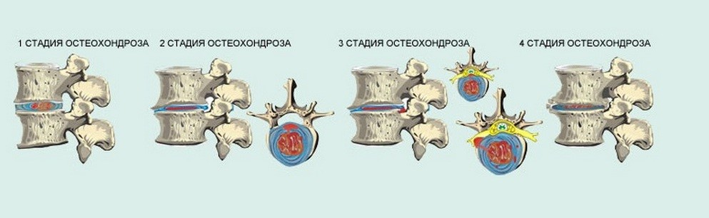 Различные стадии дегенеративного изменения позвоночника