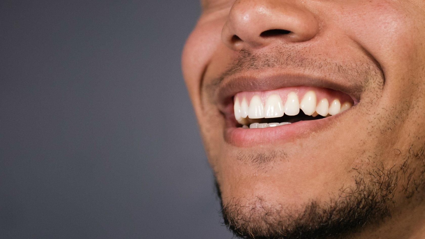 Картинки красивые зубы улыбка мужчины