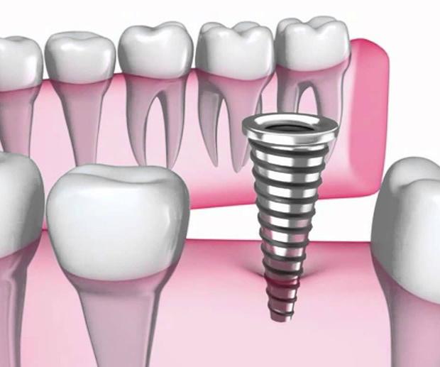 зубной имплантант