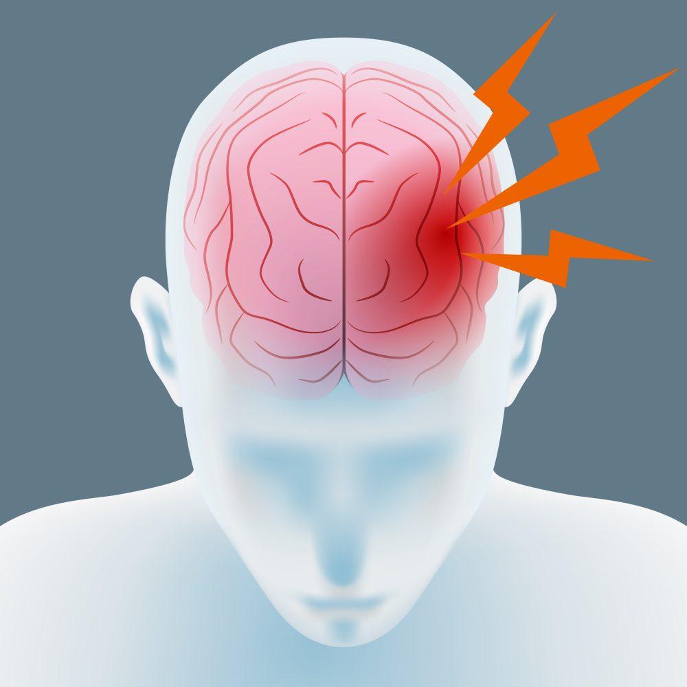 боль в теменной части головы