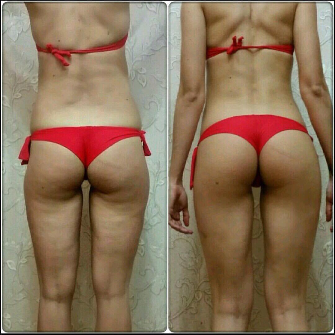 Могут Ли Похудеть Бедра. Как похудеть в бедрах и ягодицах: лучшие упражнения, питание, массаж, на каких тренажерах заниматься