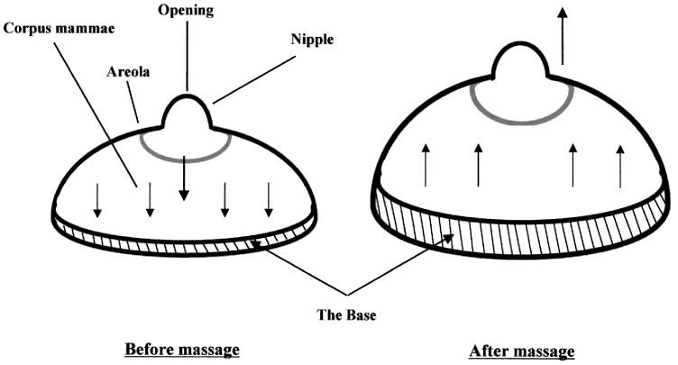 Рисунок 1. Основание груди женщины до и после массажа.