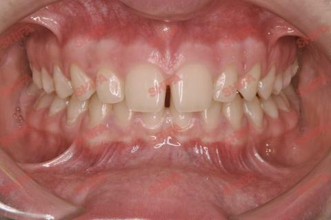Ситуация ДОпроведенного лечения - выравнивания зубов брекетами