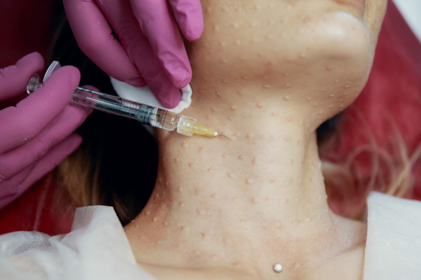 Показания и противопоказания к инъекционной косметологии